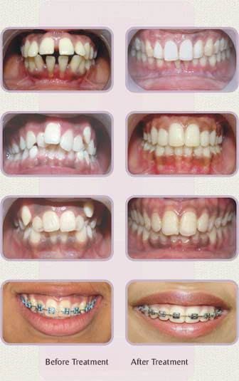 Orthodontics without wires
